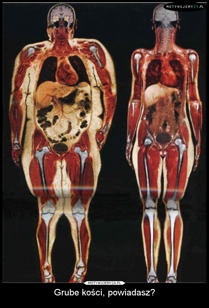 Znalezione obrazy dla zapytania grbe kości